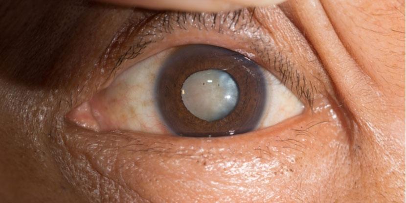 Cataract surgery through RatedDoctor