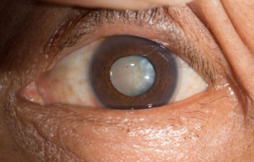 Cataract surgery through RatedDoctor